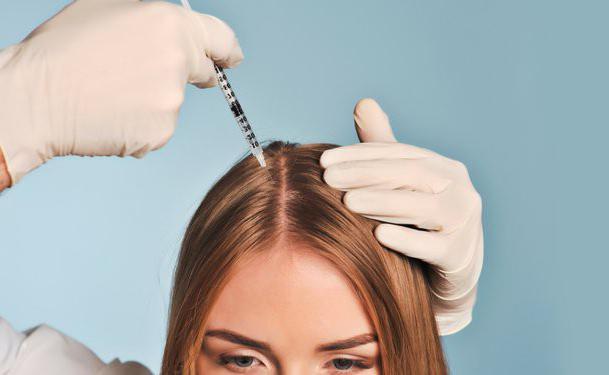 alopecija pregledi