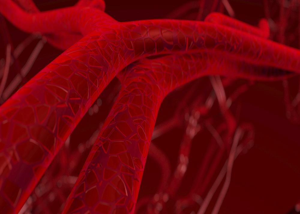 Trattamento dell'aorta