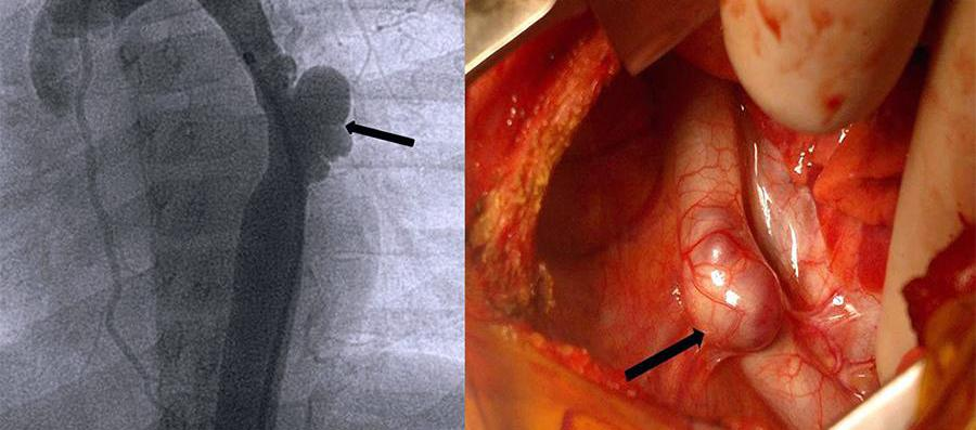 Aorta di cuore