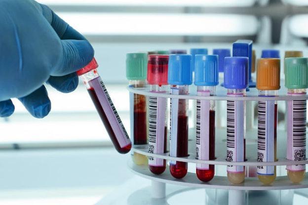 hemoliza krvi tijekom testiranja