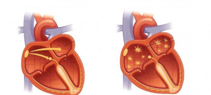 Какво е сърдечна аритмия? Причини и лечение на аритмии