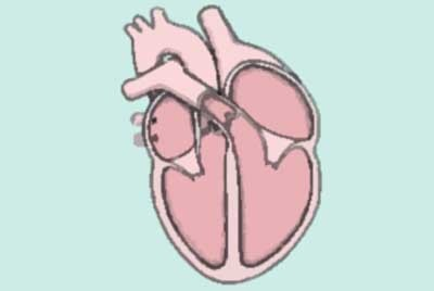 wtórna kardiomiopatia