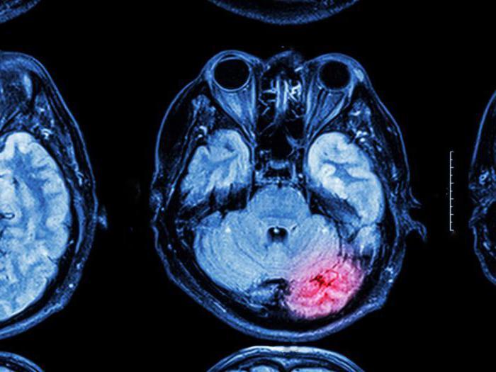 što je to vaskularna encefalopatija