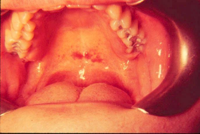 infekcijske mononukleoze