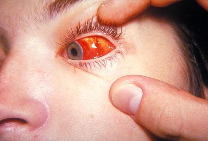 infekcijske mononukleoze pri odraslih
