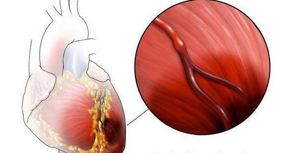 ischemia degli arti inferiori