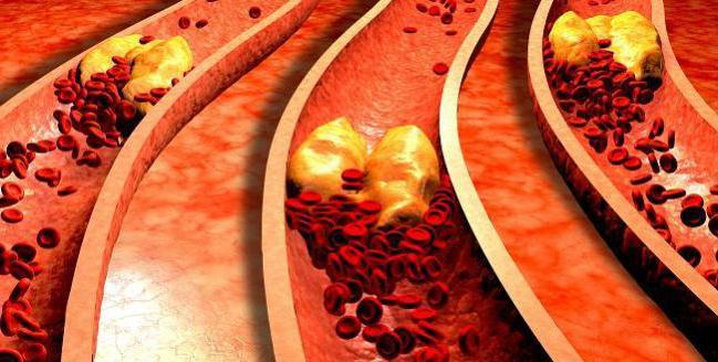 malattia da ischemia