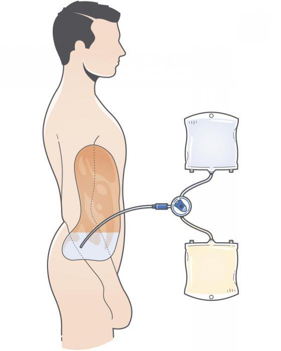 nutrizione durante la dialisi renale