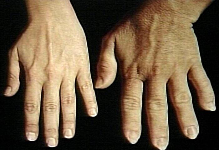 adenoma hipofize