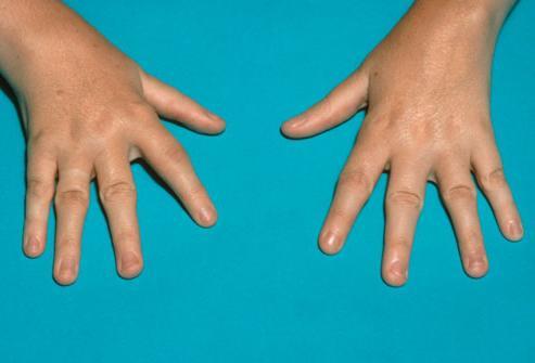 Как се лекува псориатичен артрит? - orientandoo.com