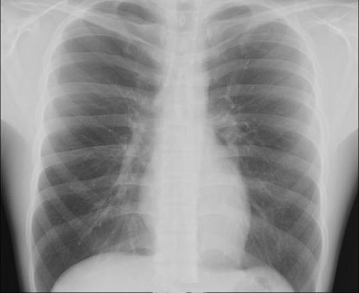 rentgenové vlastnosti
