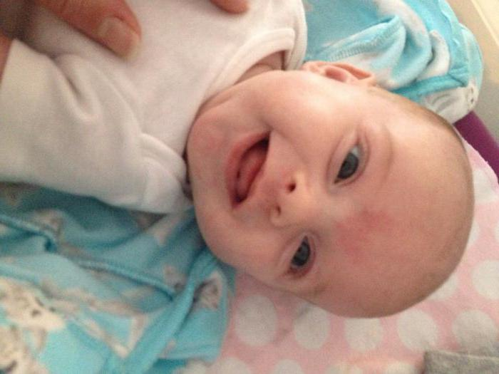 Perché i segni di nascita appaiono in un bambino?