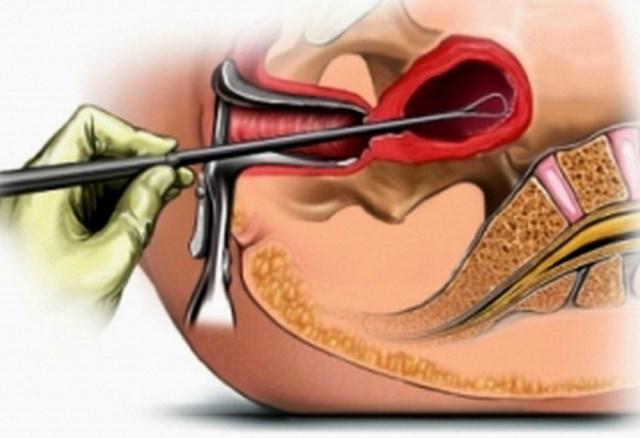 menstruacijo po strganju
