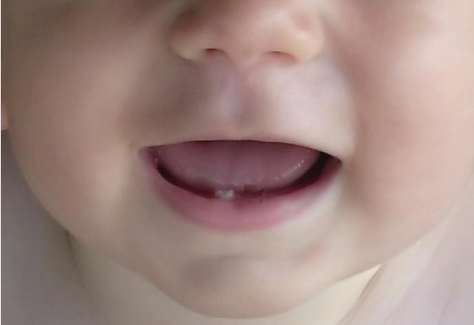 a che ora vengono tagliati i primi denti