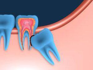 la crescita del dente del giudizio fa male alla gomma cosa fare