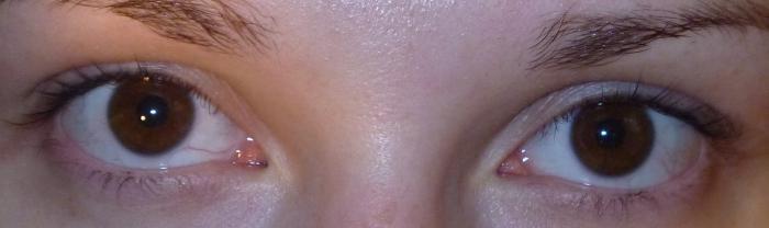 temne v očeh