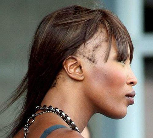 zašto su žene počele gubiti kosu