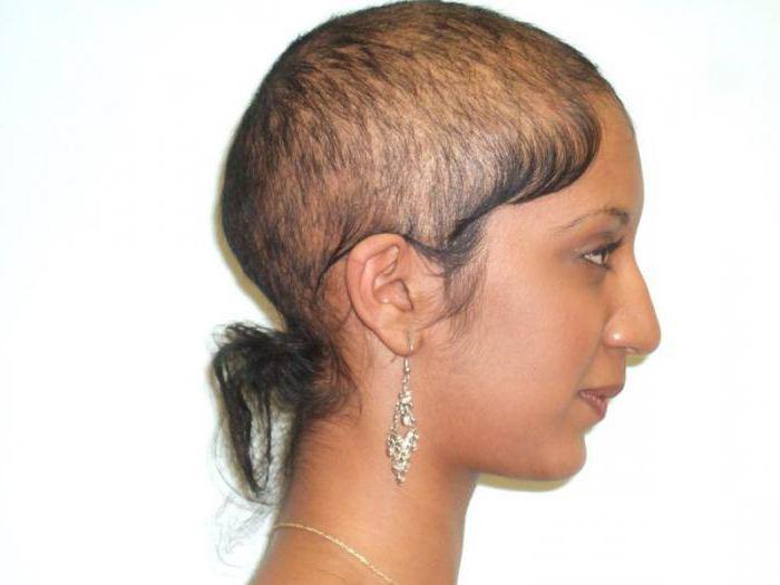 zašto žene počinju gubiti kosu