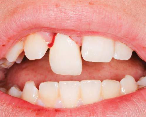 након чишћења канала, зуб боли када притиснете