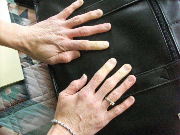 Ukočenost prstiju lijeve ruke
