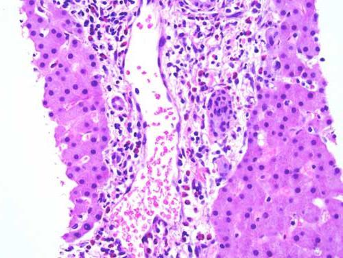 eosinofili sono abbassati durante la gravidanza