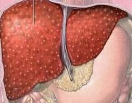 patologia wątroby