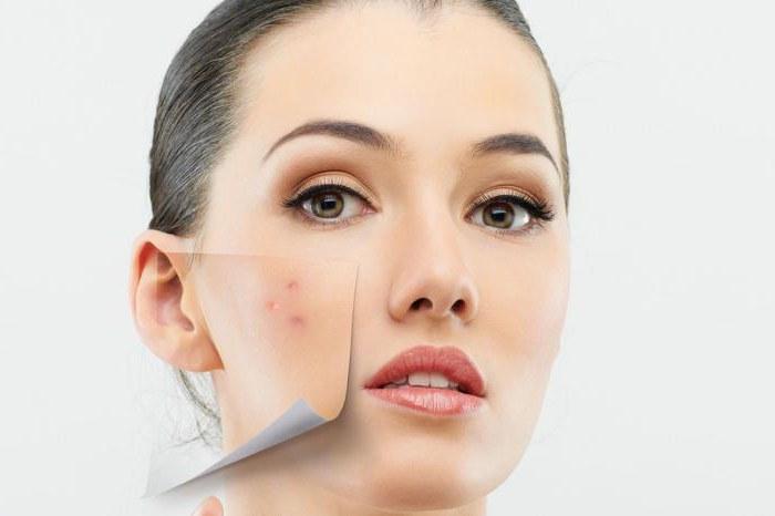 zakaj ne moreš pritisniti aken na nosu