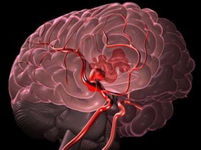 možgansko krvavitev