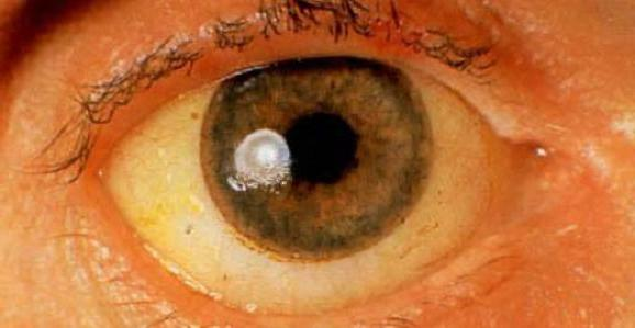 жълти бели очи