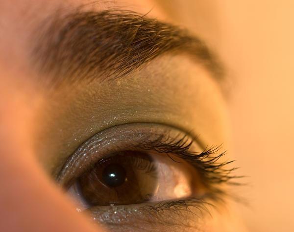 rumene pike na beljakih oči