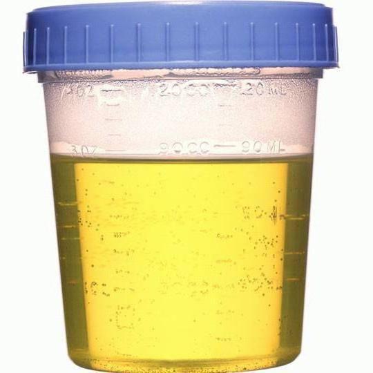 zimnitsky algoritem za zbiranje urina