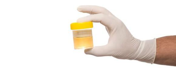 pravila za zbiranje urina po algoritmu zimnitsky